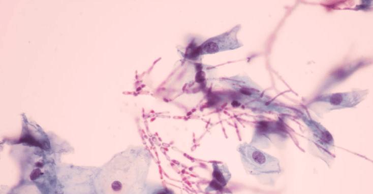Biểu hiện của nấm âm đạo gây viêm phần phụ: 1