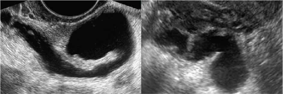 Một số hình ảnh bệnh lý phần phụ phát hiện qua siêu âm 3