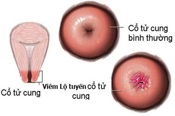 Đốt viêm lộ tuyến là gì? 1