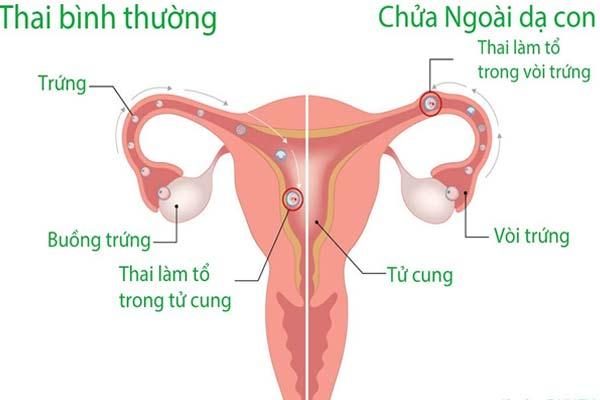 Viêm lộ tuyến làm tăng nguy cơ mang thai ngoài tử cung