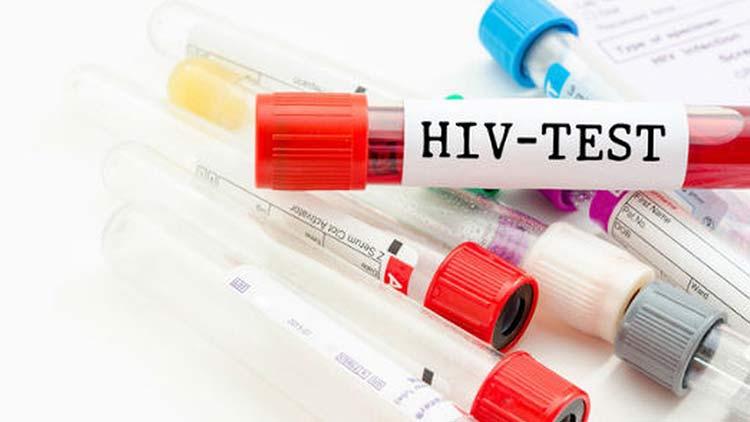 Làm gì sau khi quan hệ với người bị nhiễm phải virus HIV? 1