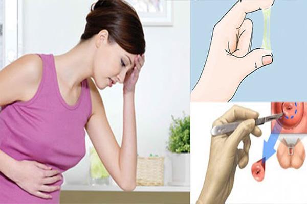 Những lưu ý cần thiết khi điều trị viêm lộ tuyến sau sinh 1