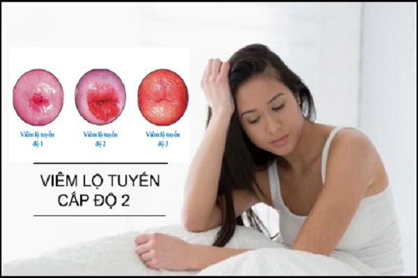 Điều trị viêm lộ tuyến bằng phương pháp áp lạnh