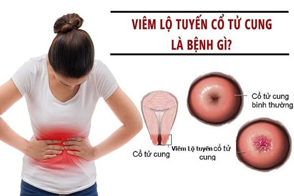 Viêm lộ tuyến cổ tử cung là gì? 1