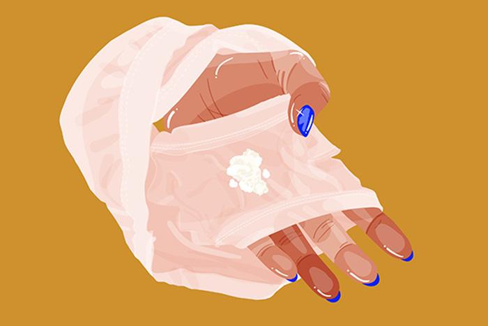 Thế nào là hiện tượng âm đạo ra dịch trắng sữa? 1