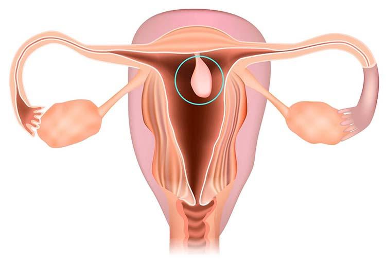 Đôi nét về bệnh polyp tử cung 1