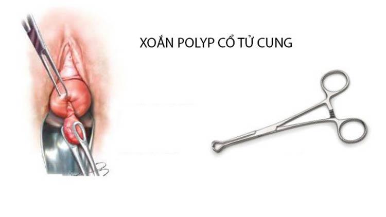 Xoắn polyp cổ tử cung có bị đau không? 1