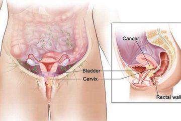 Ung thư cổ tử cung có lây không? Giải đáp chi tiết