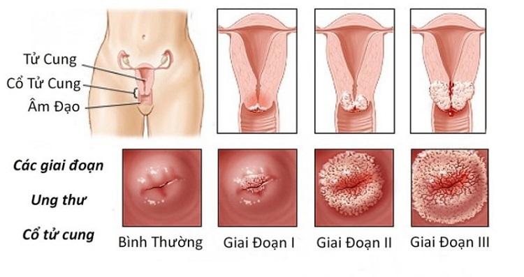 Ung thư cổ tử cung được chia thành nhiều giai đoạn khác nhau