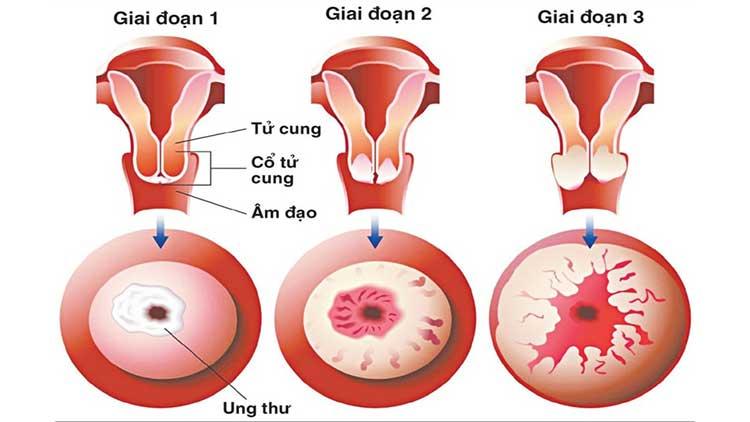 Các giai đoạn tiến triển của ung thư cổ tử cung? 1
