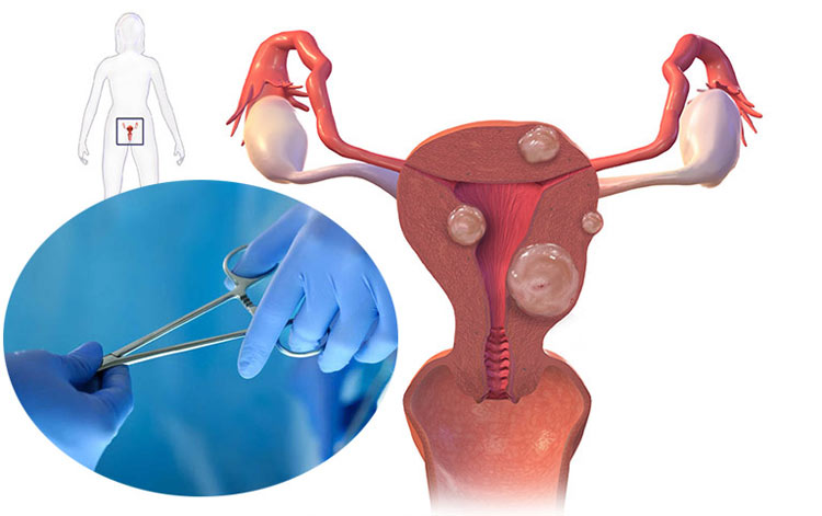 Bệnh u xơ tử cung kích thước bao nhiêu thì mổ được? 1