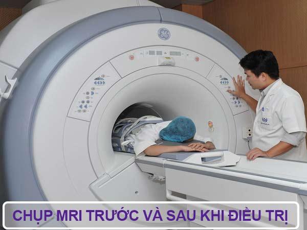3. Điều trị u xơ tử cung bằng phương pháp Fus-mri được thực hiện như thế nào? 1