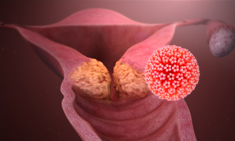 Biến chứng ung thư cổ tử cung 1